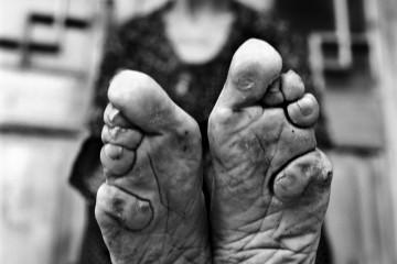 Jo Farrell - Living History: Bound Feet © Jo Farrell